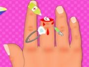 Finger Surgery